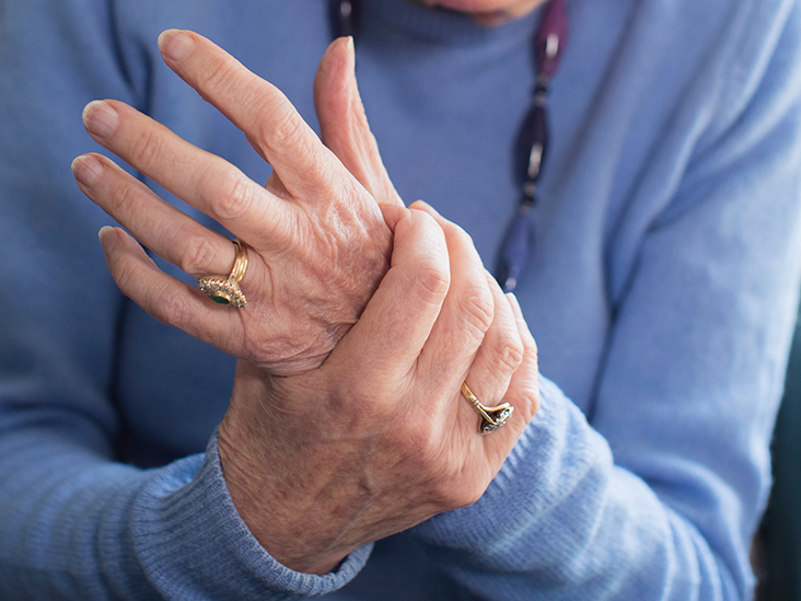 COVID-19 and rheumatoid arthritis: What to know